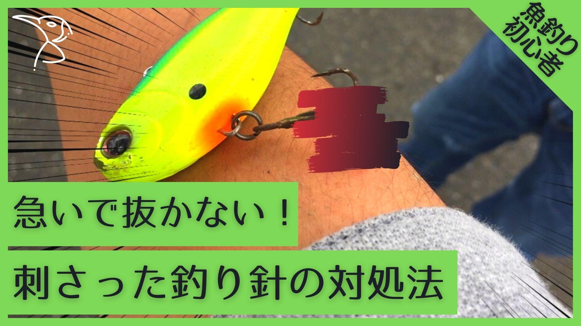 【Youtube】ルアーフック、釣り針が刺さった時の対処法!病院の治療費は〇〇円
